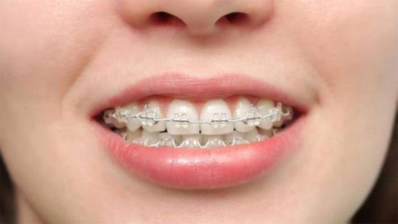 Ortodonzia Invisibile Beinasco - Ortodonzia Torino - Ortodonzia Beinasco - Ortodonzia Invisibile Torino - Studio Odontoiatrico Beinasco - A TE Clinics