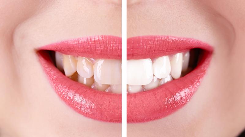 Sbiancamento dentale professionale - A TE Clinics - Sbiancamento Dentale Beinasco - Sbiancamento Dentale Torino - Studio Odontoiatrico Beinasco