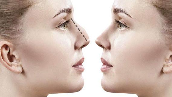 Rinoplastica Torino - Chirurgia estetica del naso - Chirurgia Estetica Torino - A TE Clinics è specializzata negli interventi di Rinoplastica Torino