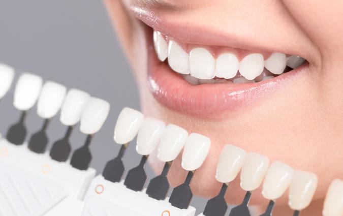 esempio di faccette dentali