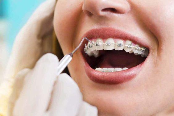 dentista controlla apparecchio fisso