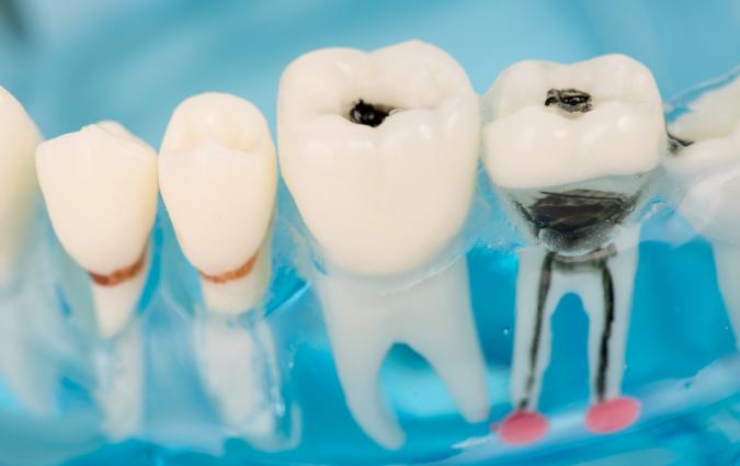 denti cariati e poi curati