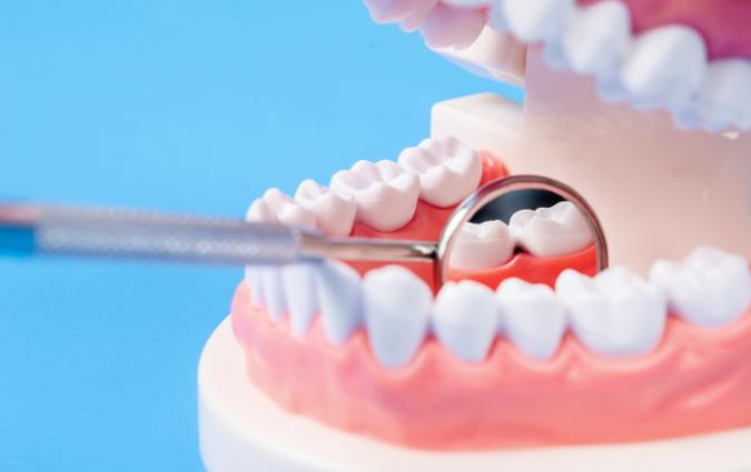 dottore illustra le carie dentali