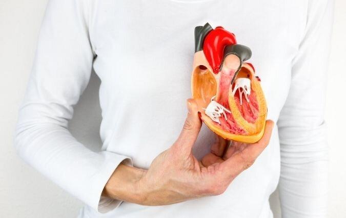 sezione di un cuore affetto da cardiopatia ischemica